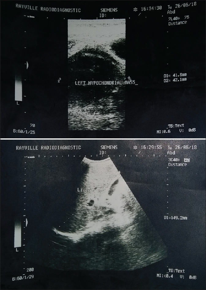 Figure 1: Abdominopelvic ultrasound scan showing a left hypochondrial mass